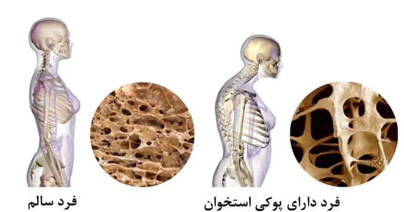 Photo of اطلاعاتی در مورد تراکم استخوان + مواد غذایی برای تراکم استخوانی بیشتر