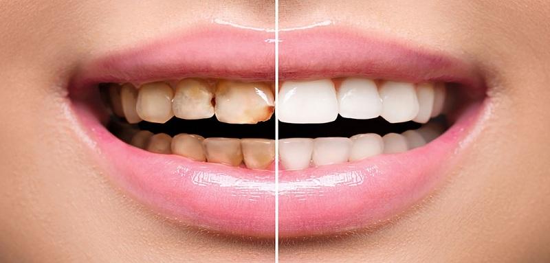 تصویر از جرم گیری دندان در خانه + روش های مختلف از بین بردن جرم ها