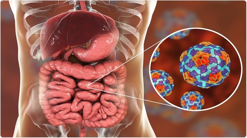 Photo of نشانه های و علائم عفونت روده + روش های پیشیگری و درمان این بیماری