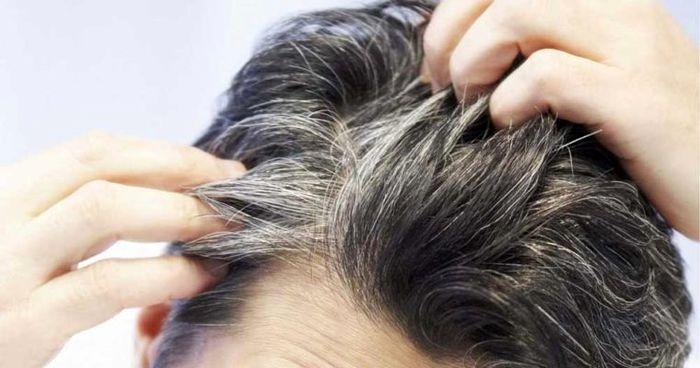 پیشگیری از سفیدی ریش
