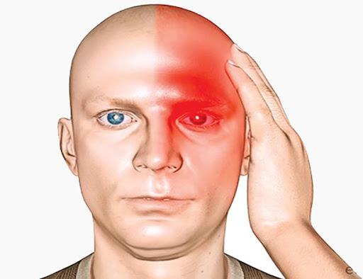 Photo of پیشگیری از میگرن + روش های درمان و جلوگیری از سردرد میگرنی