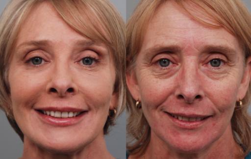 Photo of درمان افتادگی پوست + بهترین ماسک های طبیعی برای سفت کردن پوست شل