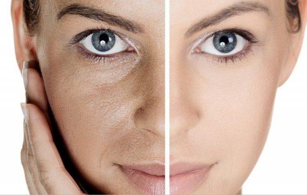 Photo of صاف شدن پوست صورت + ماسک های موثر و خوب برای زیبایی و صاف شدن پوست