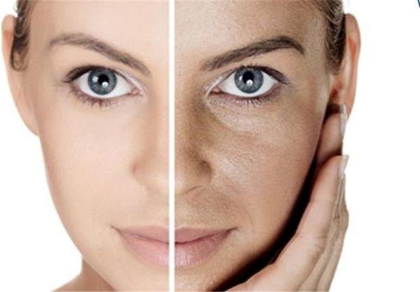 روش روشن کردن پوست در هفت روز