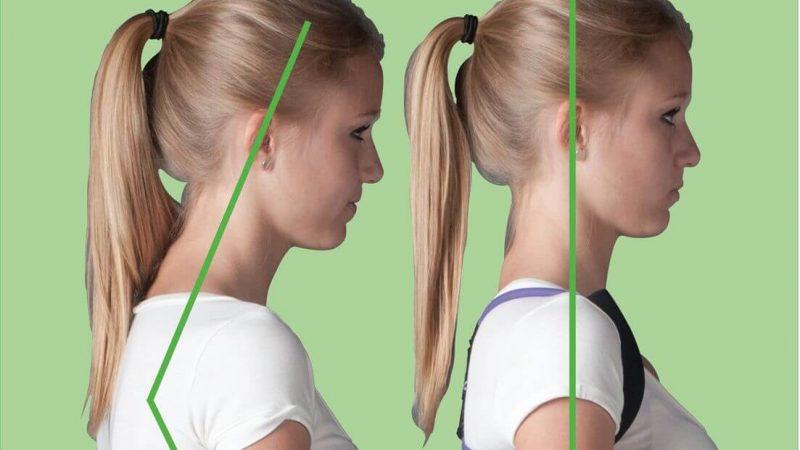Photo of علائم و عوارض قوز گردن + راهکارهای مناسب برای رفع این عارضه گردنی