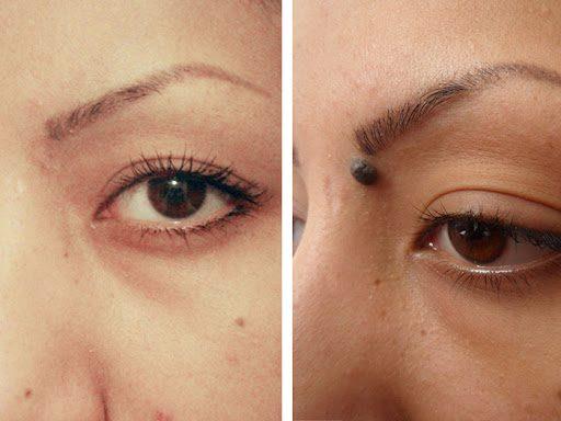 Photo of برداشتن خال صورت با لیزر + فواید و معایب این روش برای پوست