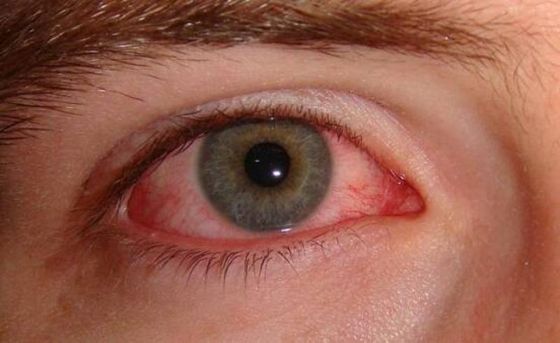 Photo of رفع برق زدگی چشم + روش های رفع برق زدگی تسکین درد چشم