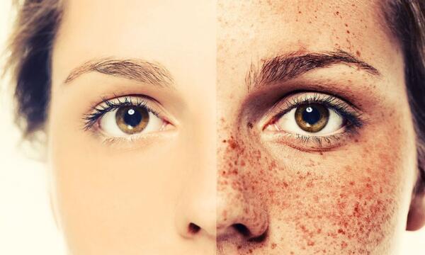 درمان لک صورت با عسل