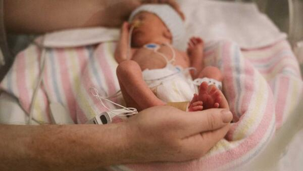 مراقبت از نوزاد نارس در منزل