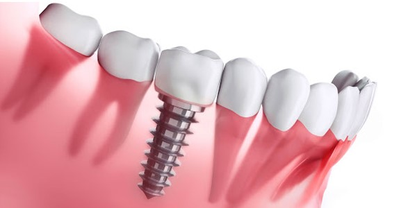 کاشت دندان توسط متخصص ایمپلنت