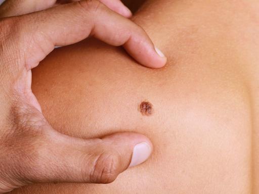 بیماری ملانوما چیست و این مشکل پوستی را چطور می توان پیشگیری و درمان کرد