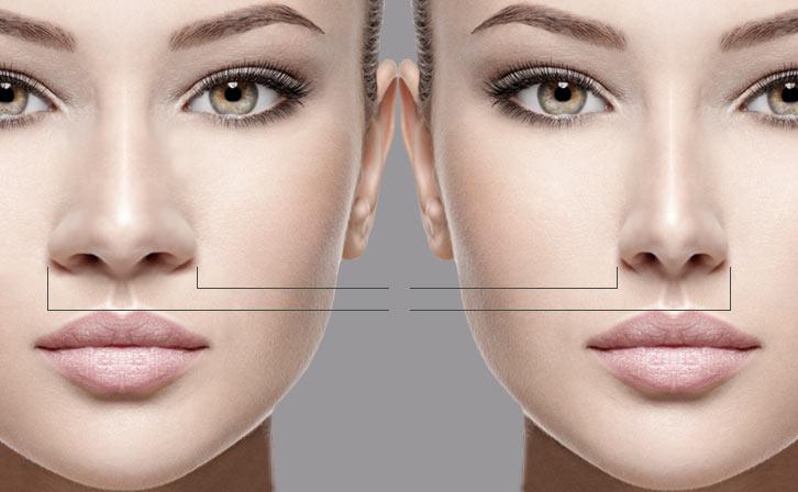 روش کاهش ورم بینی پس از عمل جراحی