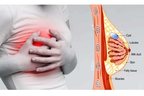 ده دلیل تیر کشیدن سینه در زنان و کارهایی که باید انجام داد