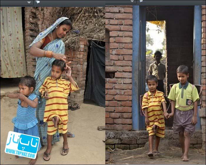 پسری هندی با چهار پا و چهار دست