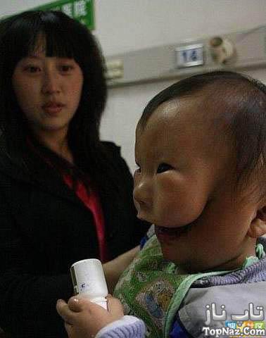 پسری ناقص که چهره ای ماسک دار دارد