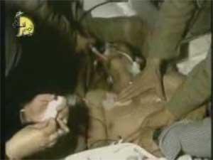 کلیپ غم انگیز آخرین لحظه زندگی یک مجروح شیمیایی